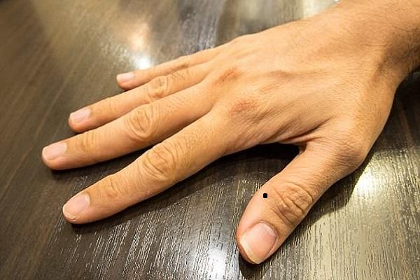 Bật mí ý nghĩa nốt ruồi ở ngón tay cái đối với nam và nữ 334963207
